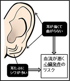 シワ 人 ある 耳たぶ に が